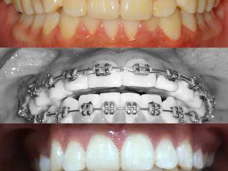 Ortodoncia-649167
