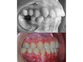 Ortodoncia-663924