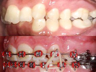 Ortodoncia-694483