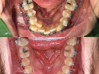 Ortodoncia-738784