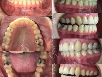 Ortodoncia-739132