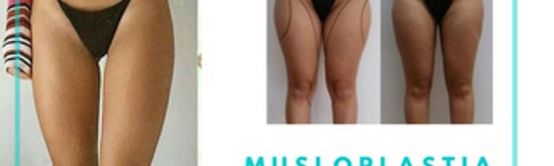 Musloplastia