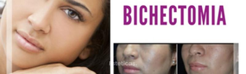 Bichectomía