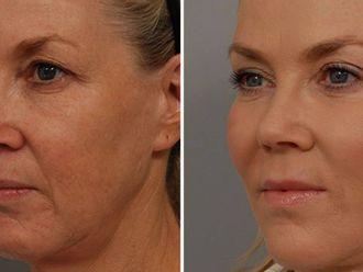Rejuvenecimiento facial-737292