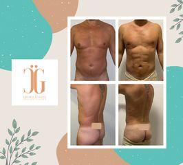 Liposucción - Dr. Cristian Gänsslen