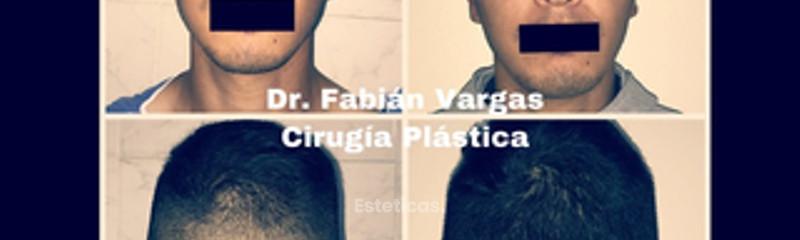 Dr. Fabian Vargas Carrasco