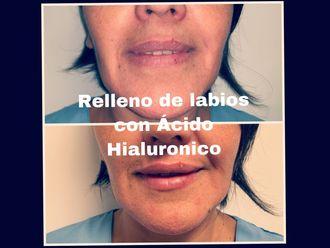 Rellenos faciales - 634052