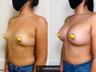 Aumento mamas - 798405