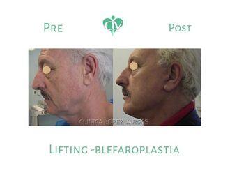 Blefaroplastia-644876