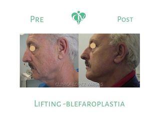 Lifting + Blefaroplastia