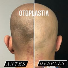 Otoplastia - Clínica Lopez Vargas