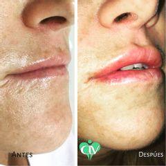 Relleno de labios - Clínica Lopez Vargas