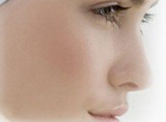 Cirugía nasal