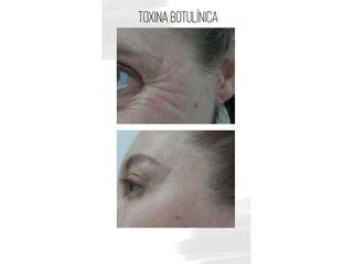 Botox - Instituto Médico Rodriguez Saa