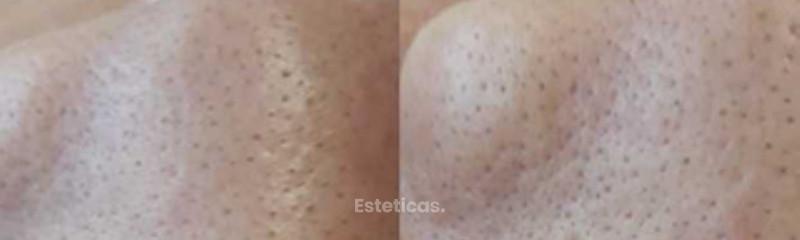 Limpieza facial profunda -antes-