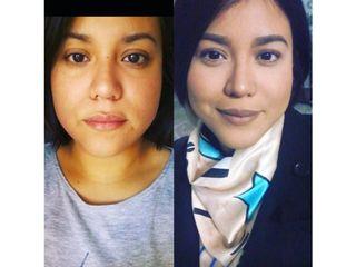 Afinamiento facial enzimatico sin cirugía