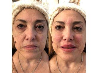 Rellenos faciales - 639504