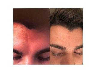 Corrección cicatriz sin cirugía