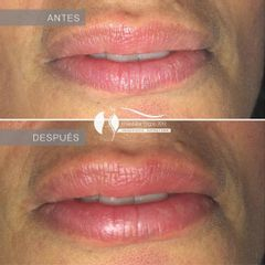 Relleno de labios - Dr. Diego Cunille