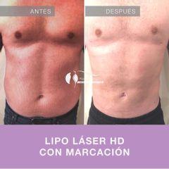 Liposucción - Dr. Diego Cunille