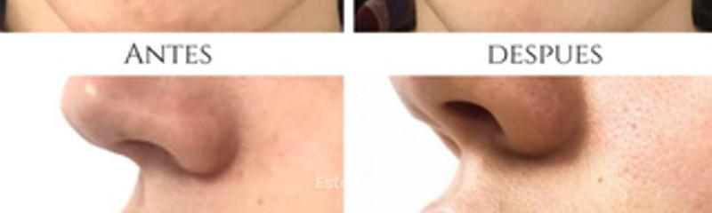 Relleno de Labios - Antes y Depues