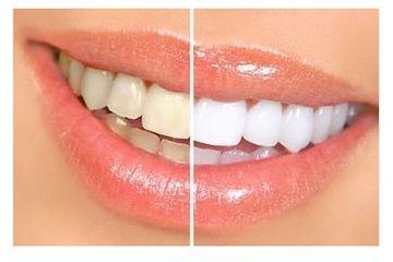 Denticorp