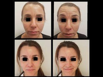 Botox - 629287
