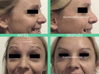 Botox - 630447