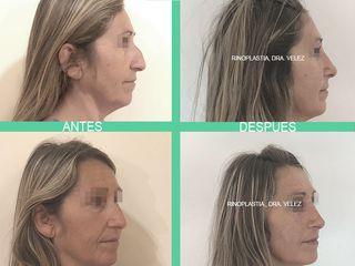Rinoplastia - Dra. Maria de la Paz Velez