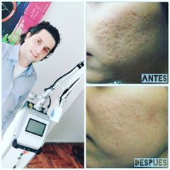 Tratamiento antiacné - Dr. Alejandro Leone