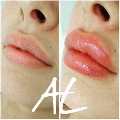 Relleno de labios - Dr. Alejandro Leone