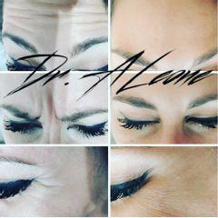 Botox - Dr. Alejandro Leone