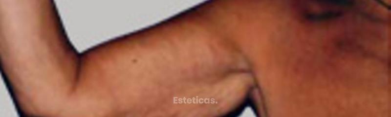 Cirugía de brazos