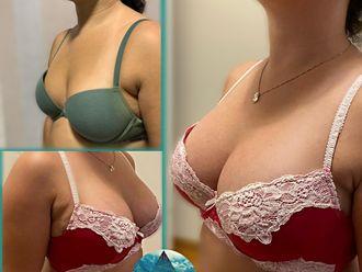 Aumento mamas-713695