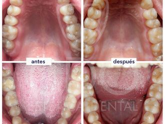 Ortodoncia invisible-648431