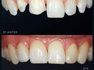 Odontología estética-697107