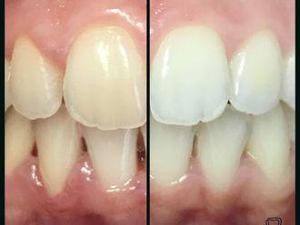 Blanqueamiento dental-697108