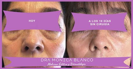 Peeling - Dra. Mónica Blanco