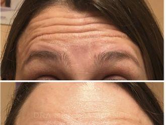 Botox-695583