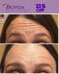 Botox - Dra. Mónica Blanco