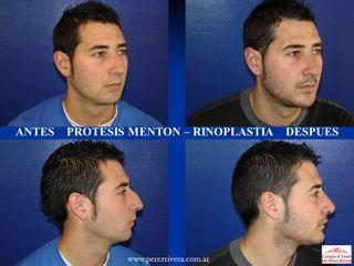 Cirugía nariz y mentón