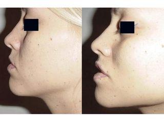 Relleno de labios con ácido hialurónico