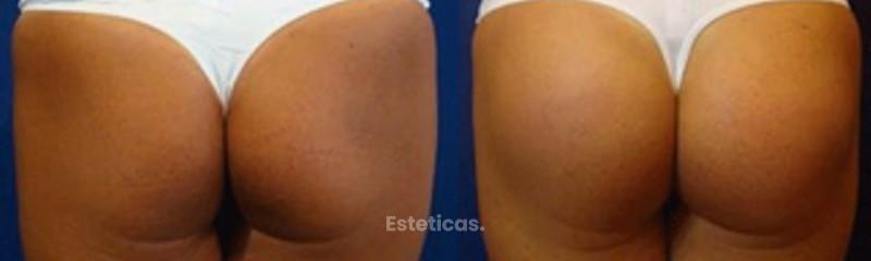 Gluteoplastia protésica