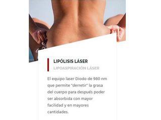 Lipólisis laser.