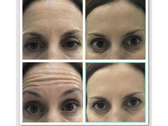 Botox - 629306