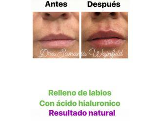 Medicina estética-629310