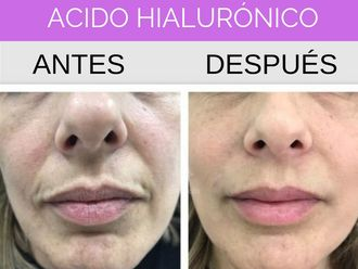 Ácido hialurónico - 636103