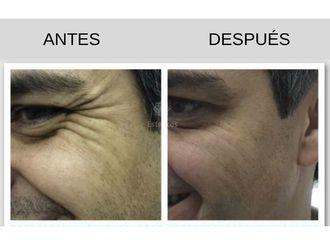 Botox - 636104