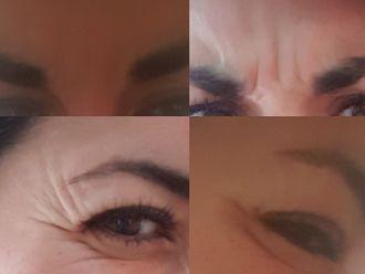 Botox-637997