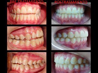 Ortodoncia-514024